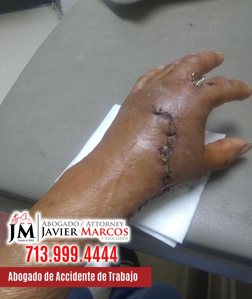 Abogado de Accidente de Trabajo | Abogado Javier Marcos | 713.999.4444