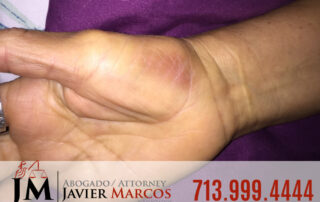 Herido en el Trabajo | Abogado Javier Marcos | 713.999.4444